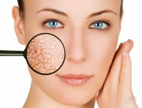 Как лечить купероз на лице аптечными препаратами