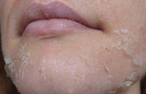 Места шелушения кожи
