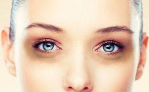 Что такое синяк под глазом
