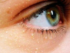 Жировики возле глаз