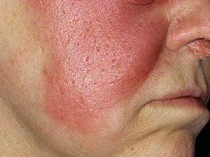 Ифицированный участок кожи