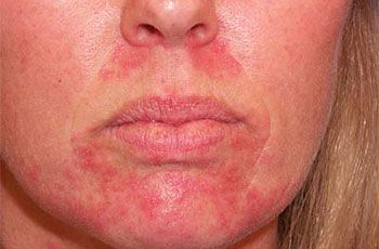 Обострение себорейного дерматита на лице