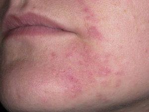 Возникновение себорейного дерматита