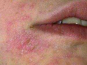 Шелушение кожи при гиперкератозе