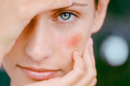 Красные шелушащиеся пятна на лице: причины появления