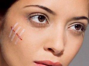 Раны на лице