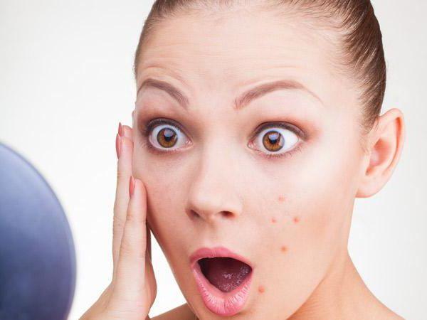 Причины появления фурункулов на лице и методы их лечения