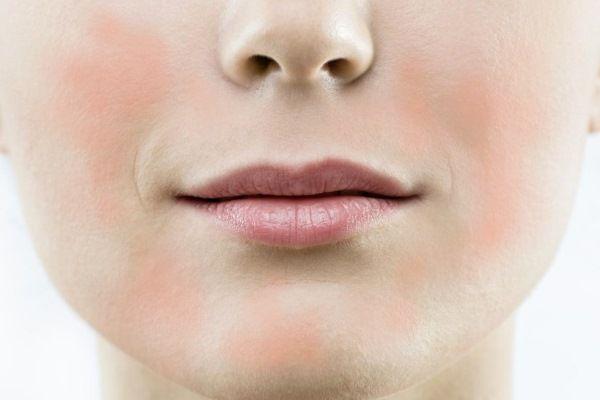 Покраснения на коже лица