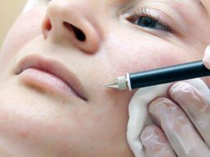Процедура электроэпиляции на лице