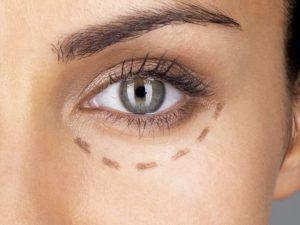 Очерченный контур вокруг глаз