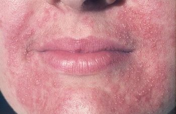 Народное лечение дерматита на лице