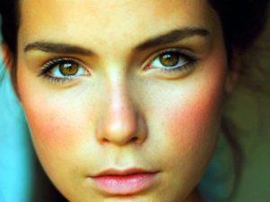 Покраснения на лице