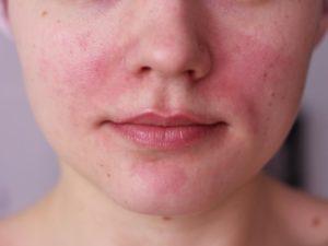 Факторы покраснения лица