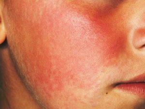 Лечение покраснений на лице