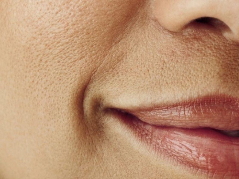 Аптечные средства для сужения пор — Красивое лицо