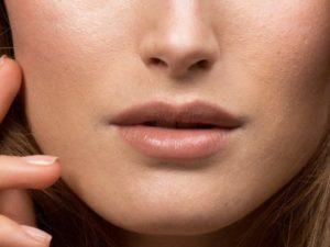 Профилактические меры при расширенных порах на лице