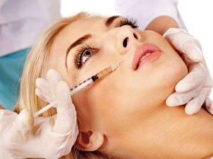 Процедура плазмолифтинга в область носогубной складки