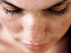 Пятна пигментации на носу