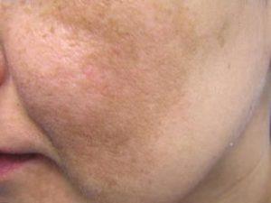Пигментация на щеках
