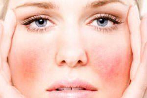 Покраснение на щеках