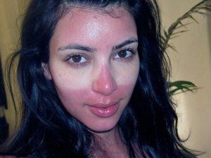 Сгоревшее на солнце лицо