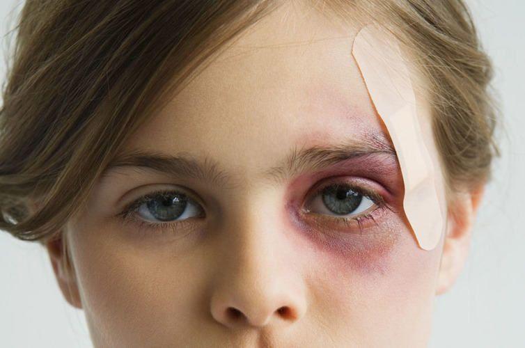Гематома на лице после удара, лечение и как снять отек