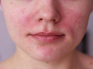 Аллергия у девушки на лице