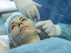 Проведение операции на лице