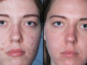 Лицо до и после озонотерапии