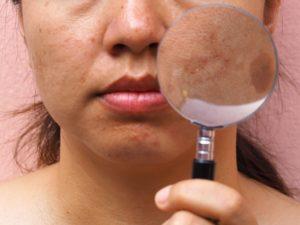Проблемная и неровная кожа
