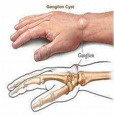 Причины, симптомы, диагностика гигромы
